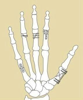 HandSurgery-13