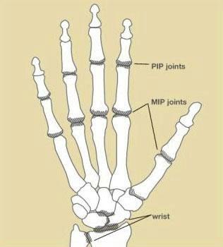 HandSurgery-3