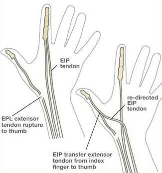 HandSurgery-44