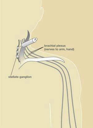 HandSurgery-51
