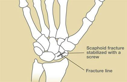 HandSurgery-54